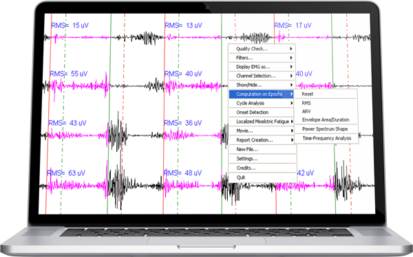 surface EMG analysis with numerical indicators such as RMS, ARV, IEMG, Power Spectrum
