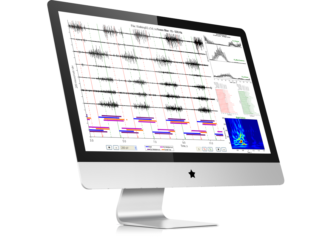 EMG Easy Report. Software for surface EMG analysis