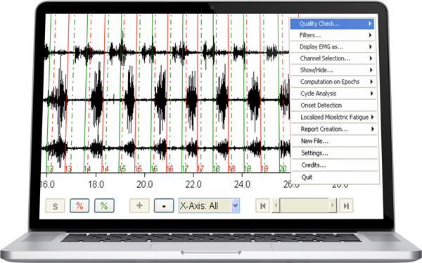 EMG Data Analysis Software