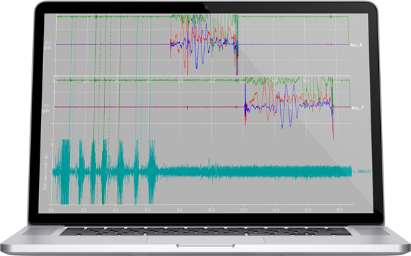 Customizable software for EMG data analysis
