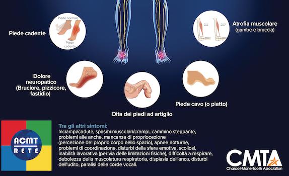 foot deformity